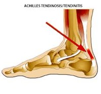 Achilles Tendon Pathology