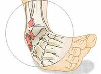 Ankle Sprains and Rehab